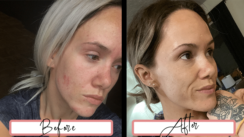 Before and After Dermarolling Treatment and Regular Skincare Routine